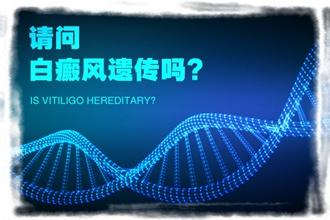 色素很快江清华科普,白点癫风遗传吗?