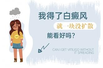 白癜风的危害问江清华,白癞风有什么伤害?